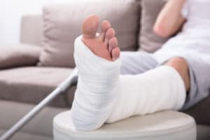 A person resting their injured foot in a cast.
