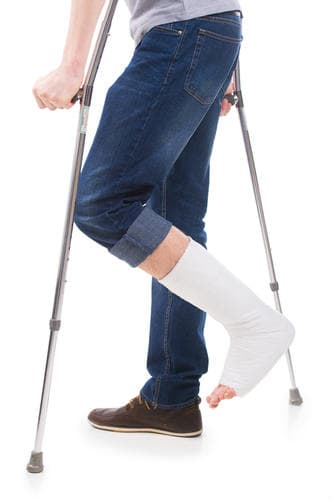 A broken leg from a slip and fall accident